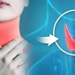 Психосоматика  щитовидная железа – гипертиреоз